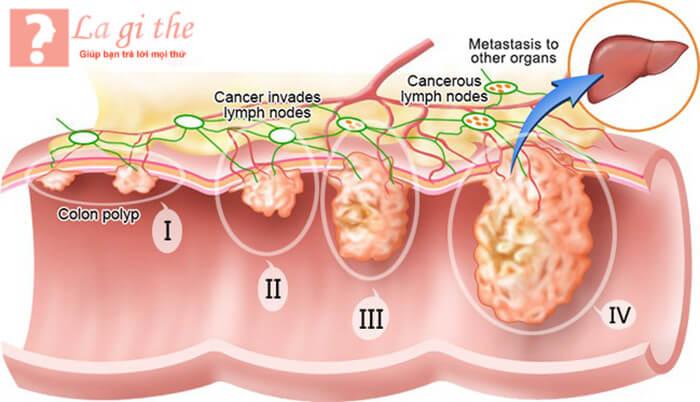 Phát triển của tế bào K
