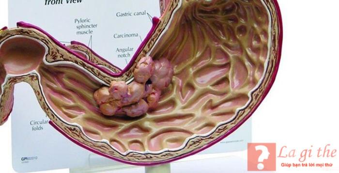 Bệnh K dạ dày