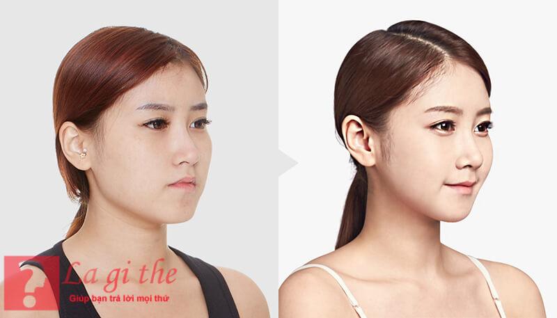Phẫu thuật thẩm mỹ giúp bạn nhanh chóng sở hữu gượng mặt Vline