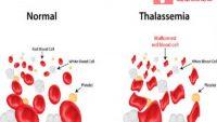 Thalassemia là bệnh gì – Có phòng tránh được nó không